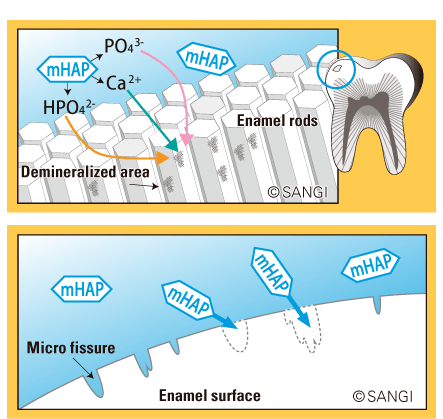 illustrations showing nano mhap fixing microfissures on enamel surface
